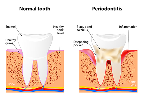 Periodontal health at Palo Alto Oral Health, Palo Alto, CA
