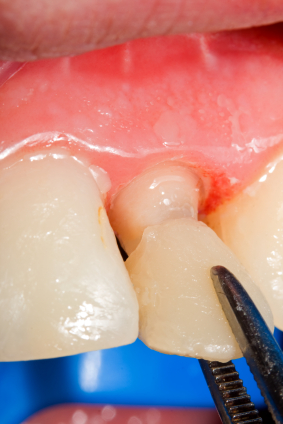 How We Use Veneers to Cover a Decayed Tooth