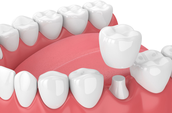 Porcelain dental crown at Palo Alto Oral Health, Palo Alto, CA