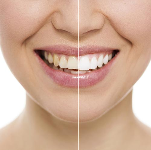 Before and after teeth whitening at Palo Alto Oral Health